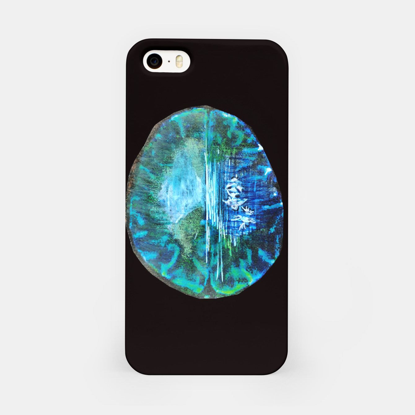Image of lost and found world brain art for paratissima 19 Yulia A Korneva mri immage iPhone Case - Live Heroes